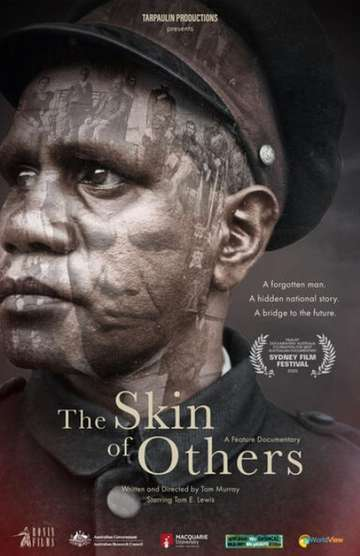 The Skin of Others